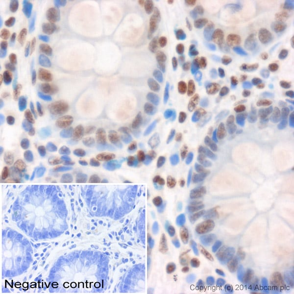 Immunohistochemistry (Formalin/PFA-fixed paraffin-embedded sections) - Anti-Histone H3 (tri methyl K4) antibody - ChIP Grade (ab8580)
