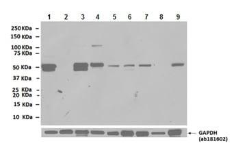 Western blot - Anti-Desmin antibody (ab8592)