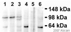 Western blot - Anti-Transferrin Receptor antibody [B349 (DF1513)] (ab8598)