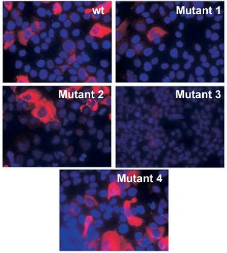 Immunocytochemistry/ Immunofluorescence - Anti-Hepatitis B Virus pre S2 Antigen antibody [S26] (ab8635)