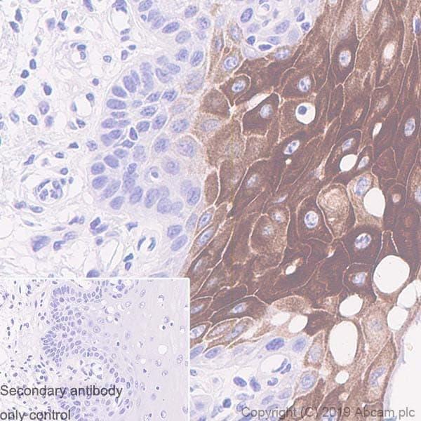 Immunohistochemistry (Formalin/PFA-fixed paraffin-embedded sections) - Anti-Cytokeratin 16/K16 antibody [LL025] (ab8741)