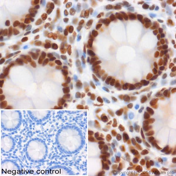 免疫组化(福尔马林/PFA固定石蜡切片)抗组蛋白H3(单甲基K4)抗体-芯片级(AB8895)