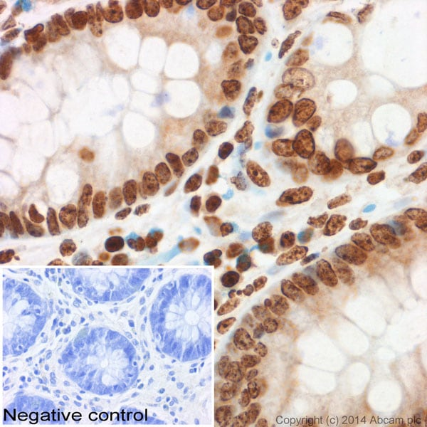 Immunohistochemistry (Formalin/PFA-fixed paraffin-embedded sections) - Anti-Histone H3 (tri methyl K9) antibody - ChIP Grade (ab8898)