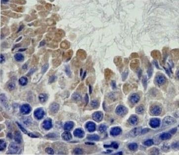 Immunohistochemistry (Formalin/PFA-fixed paraffin-embedded sections) - Anti-Notch2 antibody (ab8926)