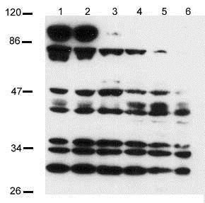 Western blot - Anti-Notch2 antibody (ab8927)