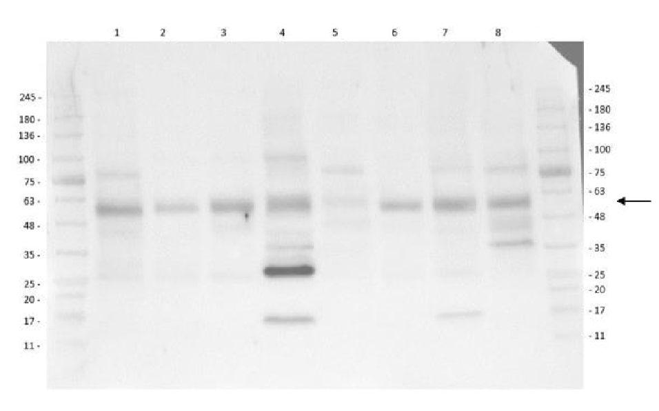 Western blot - Anti-pan-AKT (phospho T308) antibody (ab8933)