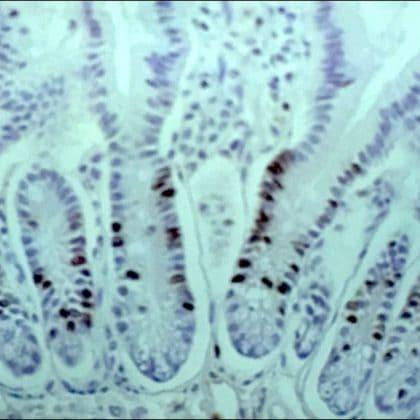 Immunohistochemistry (Formalin/PFA-fixed paraffin-embedded sections) - Anti-BrdU antibody [IIB5] (ab8955)