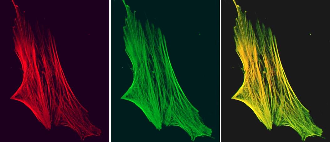 Immunocytochemistry/ Immunofluorescence - Anti-Smoothelin antibody [R4A] (ab8969)