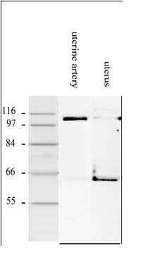 Western blot - Anti-Smoothelin antibody [R4A] (ab8969)