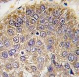Immunohistochemistry (Formalin/PFA-fixed paraffin-embedded sections) - Anti-Chordin antibody - N-terminal (ab80146)