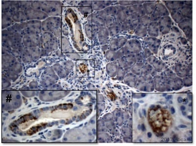 Immunohistochemistry (Formalin/PFA-fixed paraffin-embedded sections) - Anti-PD-L1 antibody [MIH6] - Low endotoxin, Azide free (ab80276)