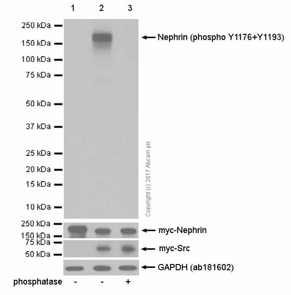 Western blot - Anti-Nephrin (phospho Y1176 + Y1193) antibody [EPTPG1] (ab80299)
