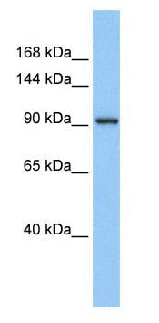 Western blot - Anti-ZN295 antibody (ab80304)