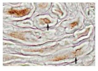 Immunohistochemistry (Formalin/PFA-fixed paraffin-embedded sections) - Anti-MFAP4 antibody (ab80319)