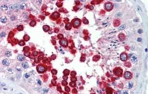 Immunohistochemistry (Formalin/PFA-fixed paraffin-embedded sections) - Anti-JAZF1 antibody (ab80329)