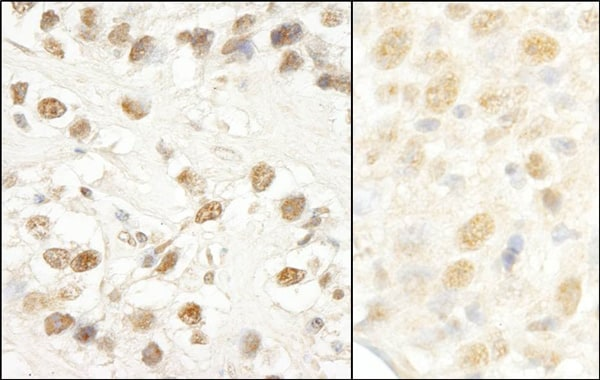 Immunohistochemistry (Formalin/PFA-fixed paraffin-embedded sections) - Anti-CROP antibody (ab80412)