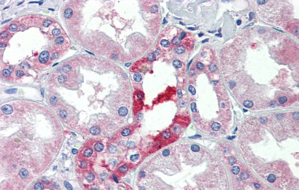 Immunohistochemistry (Formalin/PFA-fixed paraffin-embedded sections) - Anti-SLC25A28 antibody (ab80467)