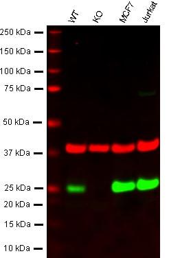 Western blot - Anti-MGMT antibody (ab80513)