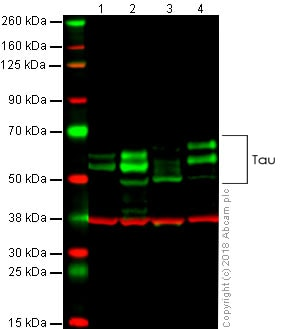 Western blot - Anti-Tau antibody [TAU-5] - BSA and Azide free (ab80579)
