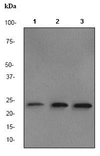 Western blot - Anti-BAG2 antibody [EPR3568] (ab80596)