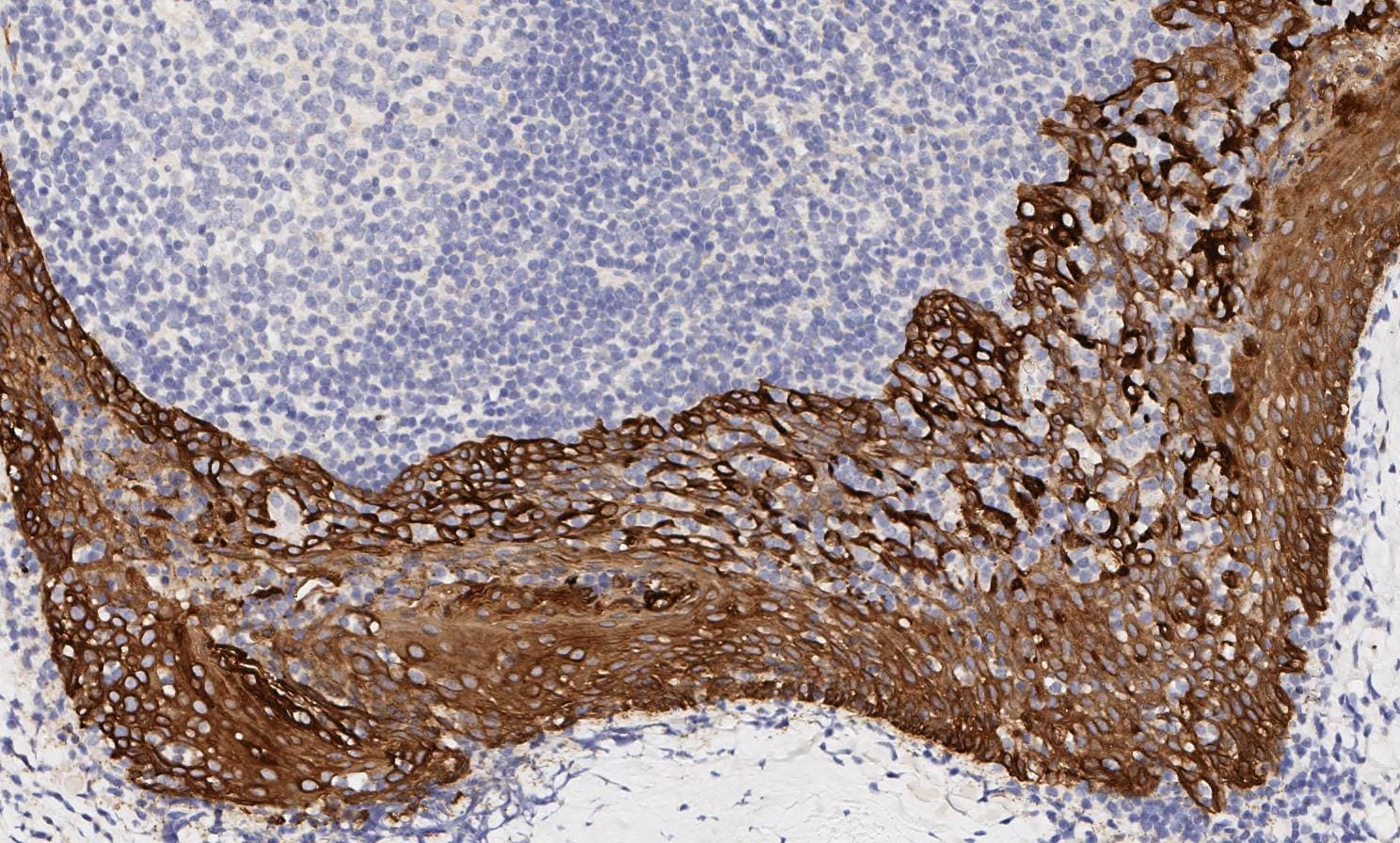 Immunohistochemistry (Formalin/PFA-fixed paraffin-embedded sections) - Anti-pan Cytokeratin antibody [AE1/AE3] - BSA and Azide free (ab80826)