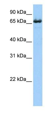 Western blot - Anti-ZDHHC17 antibody (ab80886)