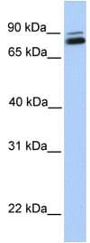 Western blot - Anti-GGT7 antibody (ab80903)