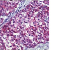 Immunohistochemistry (Formalin/PFA-fixed paraffin-embedded sections) - Anti-MUC1 antibody [MH1 ; same as CT2] (ab80952)