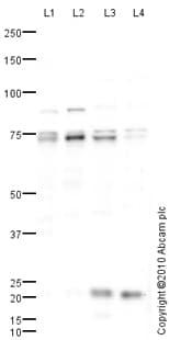 Western blot - Anti-LIM Kinase 1 antibody (ab81046)