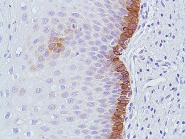 Immunohistochemistry (Formalin/PFA-fixed paraffin-embedded sections) - Anti-Bax antibody [SP47], prediluted (ab81084)