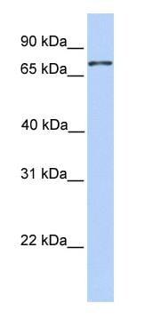 Western blot - Anti-Colec12 antibody (ab81136)