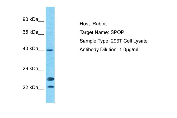 Western blot - Anti-SPOP antibody (ab81163)