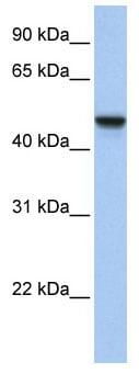 Western blot - Anti-APMAP antibody (ab81176)