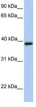 Western blot - Anti-AQP-10 antibody (ab81179)