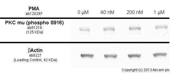 Western blot - Anti-PKC mu/PKD (phospho S916) antibody [EP1494Y] (ab81218)