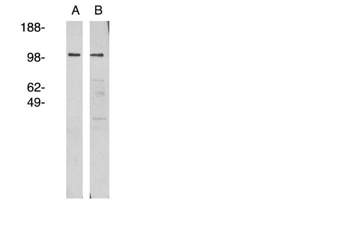 Western blot - Anti-NSMAF antibody (ab81260)