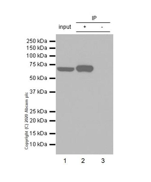 Immunoprecipitation - Anti-MMP8 antibody [EP1252Y] (ab81286)