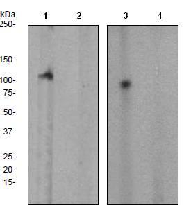 Western blot - FAK (phospho Y397) antibody [EP2160Y] (ab81298)