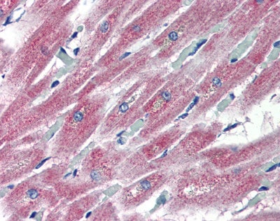 Immunohistochemistry (Formalin/PFA-fixed paraffin-embedded sections) - Anti-PLEKHH2 antibody (ab81300)