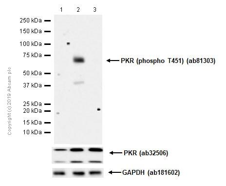 Western blot - Anti-PKR (phospho T451) antibody [EPR2152Y] (ab81303)