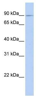 Western blot - Anti-XYLT2 antibody (ab81311)