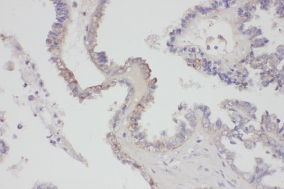 Immunohistochemistry (Formalin/PFA-fixed paraffin-embedded sections) - Anti-FGF8 antibody (ab81384)