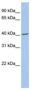 Western blot - Anti-Fibromodulin antibody (ab81443)