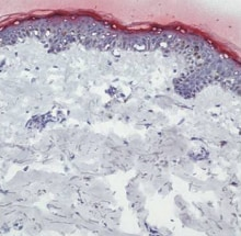 Immunohistochemistry (Frozen sections) - Anti-Filaggrin antibody (ab81468)