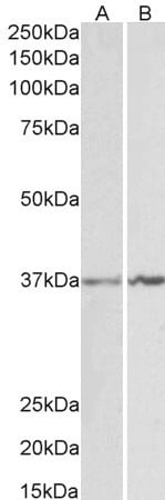Western blot - Anti-Annexin A1/ANXA1 antibody (ab81528)