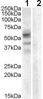 Western blot - Anti-ARSD antibody (ab81978)