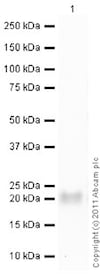 Western blot - Recombinant human TIMP1 protein (ab82104)