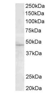 Western blot - Anti-TMPRSS4 antibody (ab82176)