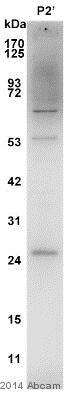 Western blot - Anti-Dynorphin A antibody (ab82509)