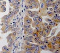 Immunohistochemistry (Formalin/PFA-fixed paraffin-embedded sections) - Anti-Dicer antibody [4A6] (ab82539)